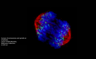 Human chromosomes and spindle at anaphase